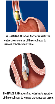 Halo endocopic ablation catheter